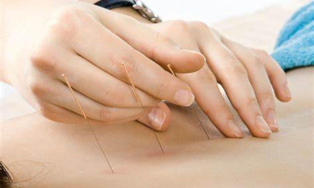 L'Acupuncture, un remède contre la dépression?